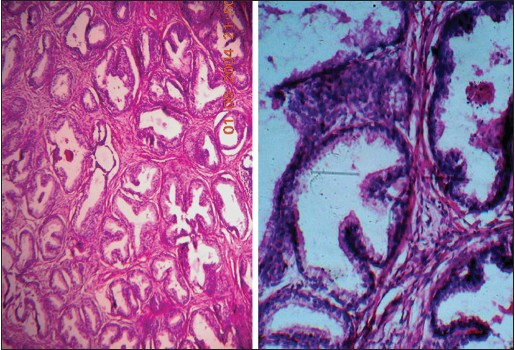 Figure 1: 10X, H and E showing benign hyperplasia of prostate (left), 40X, PAS benign hyperplasia of prostate showing intracytoplasmic and intraluminal positivity (right)