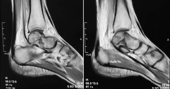 Management of 1½ month old neglected talus neck fracture: A case ...