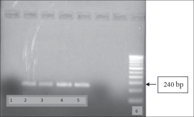 Figure 1: Analysis of PCR Product by Agarose Gel Electrophoresis