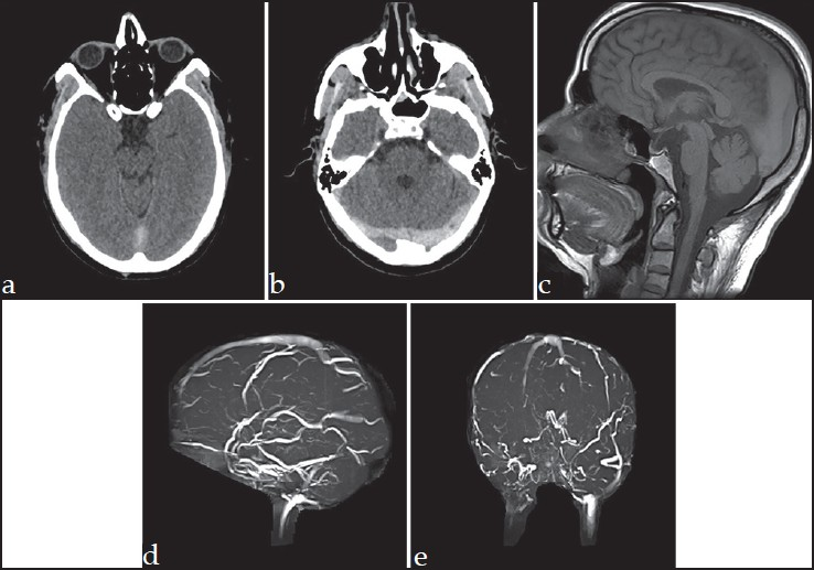 Figure 1: The computed tomography images reveal abnormal hyperdensity in the posterior portion of superior sagi�� al sinus (a) and bilateral transverse sinuses. (b) The magnetic resonance imaging image shows abnormal hyperintense signal in the superior sagittal sinus on T1W sequence. (c) The magnetic resonance venography images reveal non-visualization of the posterior portion of superior sagittal sinus (d) and bilateral transverse sinuses (e), suggestive of thrombosis