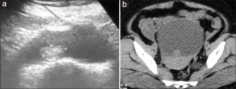 Figure 1: (a) Ultrasonography showing a circumferential tumor approximately 2 cm × 2 cm in diameter that was located supratrigonally and extended to the posterior wall of the bladder. (b) Computerized tomographic showing a circumferential tumor approximately 2 cm × 2 cm in diameter that was located supratrigonally and extended to the posterior wall of the bladder