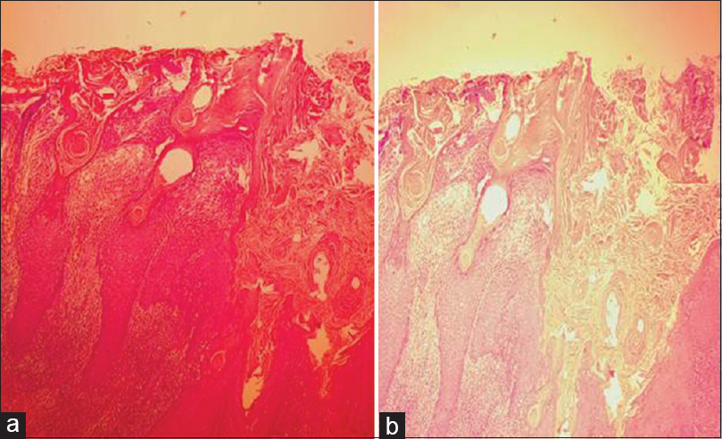 Figure 2: (a and b) Acanthosis, hyperkeratosis, and papillomatosis. No areas of malignancy seen. The dermoepidermal junction shows dense chronic inflammatory infiltrate