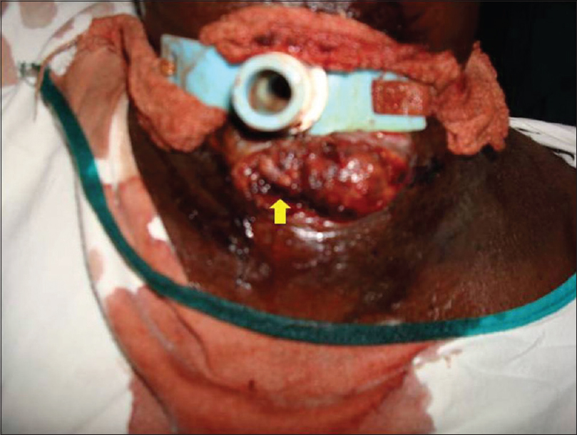 Figure 2: Maggots (yellow arrow mark) at the stoma of the tracheostomy